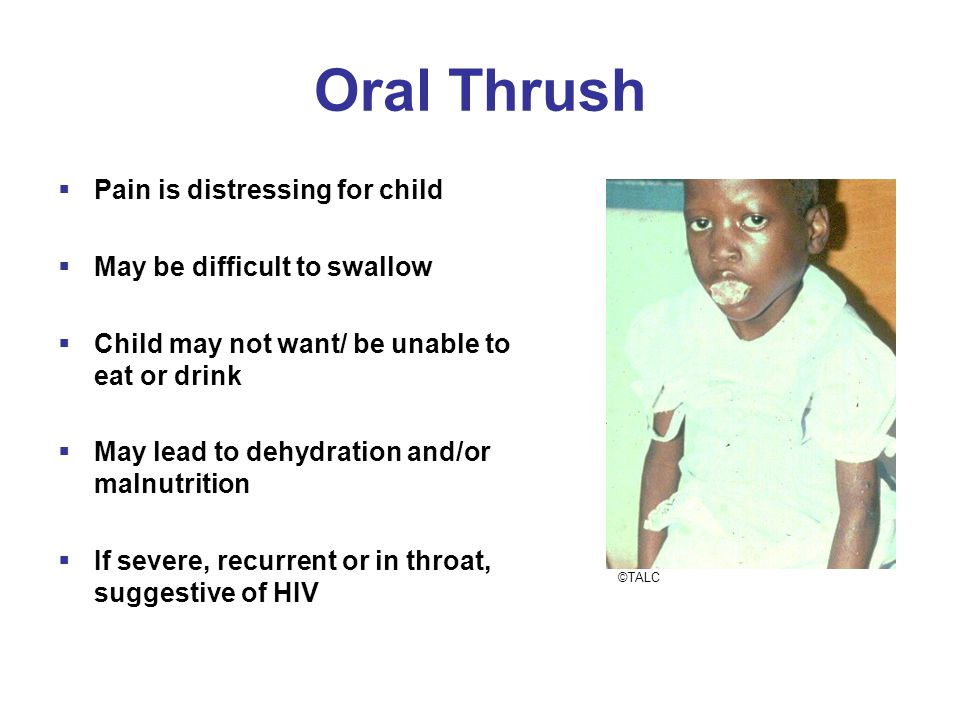 Oral Thrush  Pain is distressing for child  May be difficult to swallow  Child may not want/ be unable to eat or drink  May lead to dehydration and/or malnutrition  If severe, recurrent or in throat, suggestive of HIV ©TALC