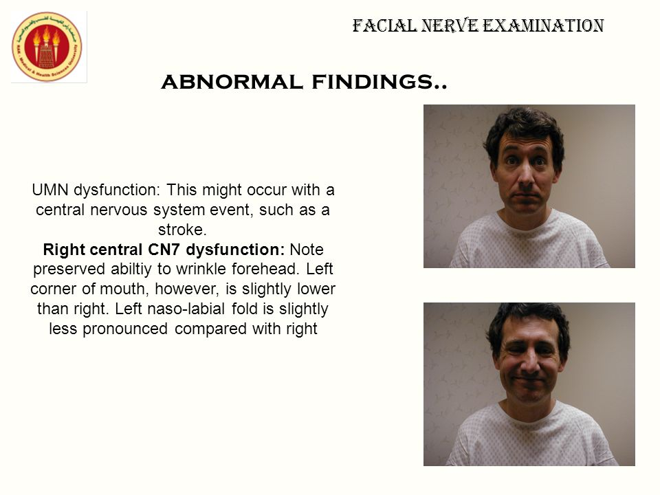 Facial nerve examination abnormal findings.. UMN dysfunction: This might occur with a central nervous system event, such as a stroke. Right central CN
