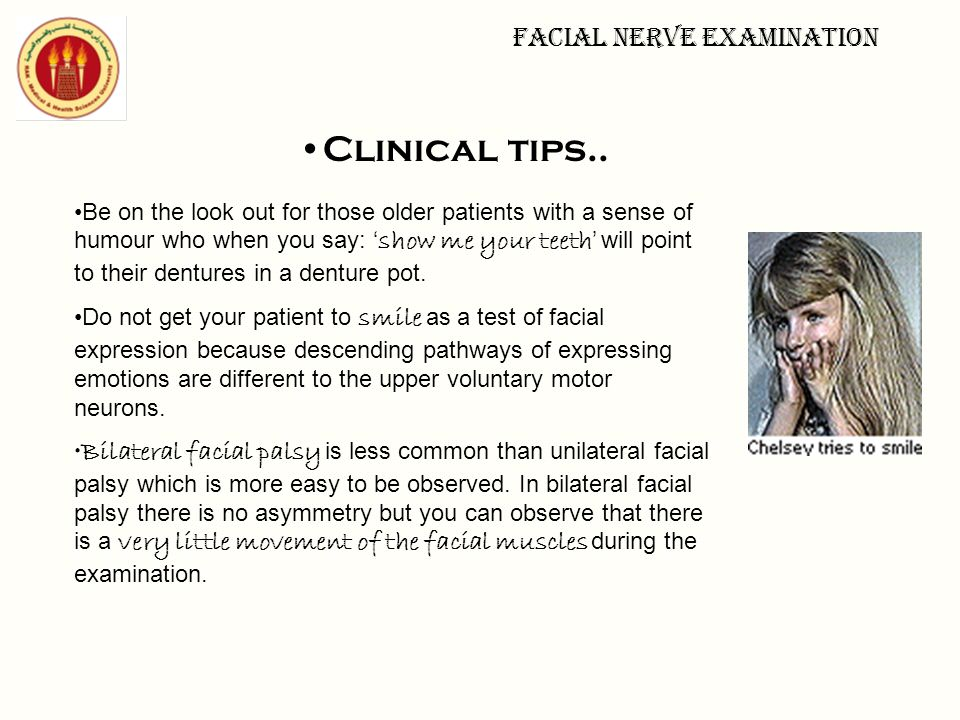 Facial nerve examination Clinical tips.. Be on the look out for those older patients with a sense of humour who when you say: ' show me your teeth ' w