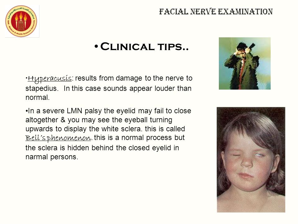 Facial nerve examination Clinical tips.. Hyperacusis : results from damage to the nerve to stapedius. In this case sounds appear louder than normal. I