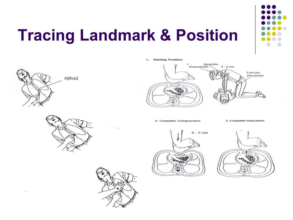 8 Tracing Landmark & Position