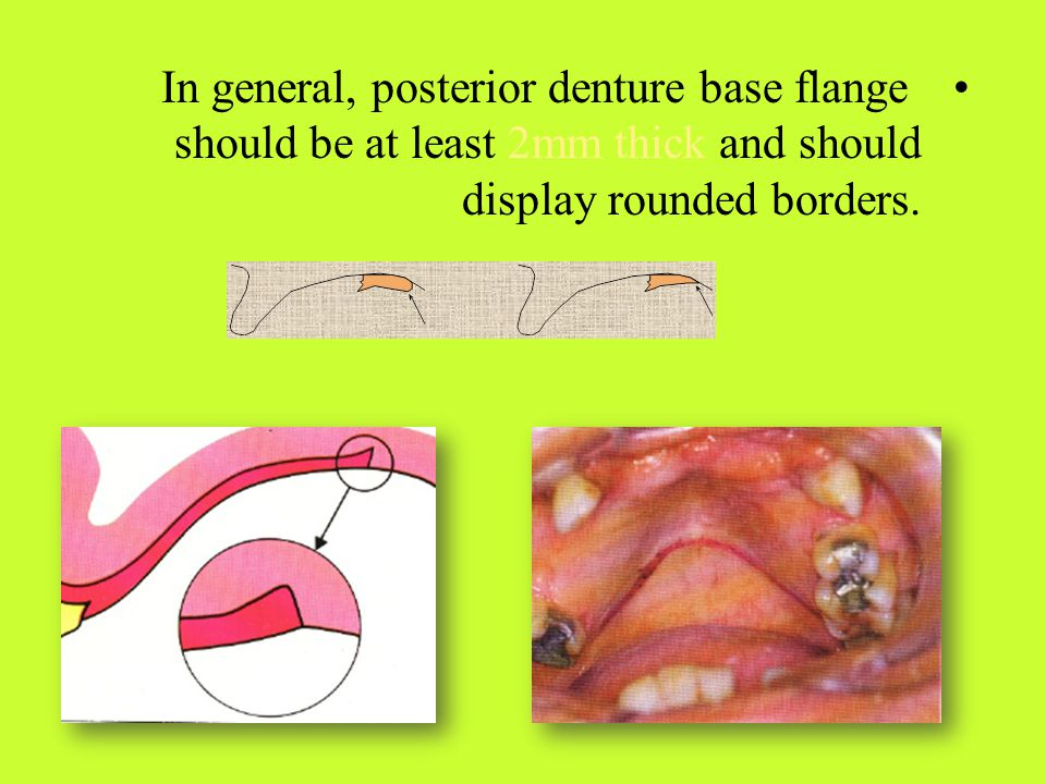 In general, posterior denture base flange should be at least 2mm thick and should display rounded borders.