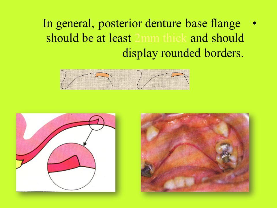 I – Otological Symptoms : Pressure on Vestibulo-Cochlear n.