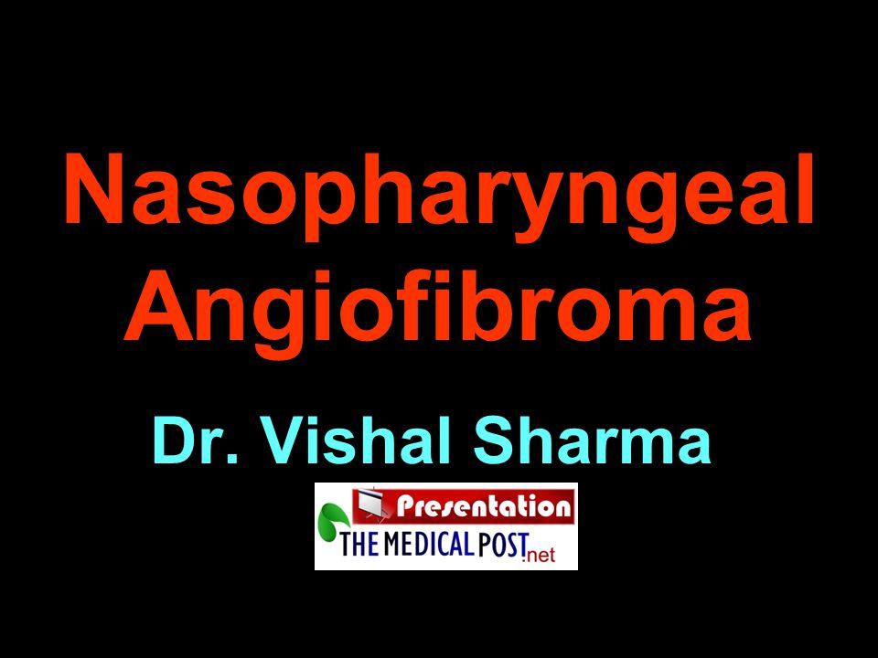Nasopharyngeal Angiofibroma Dr. Vishal Sharma