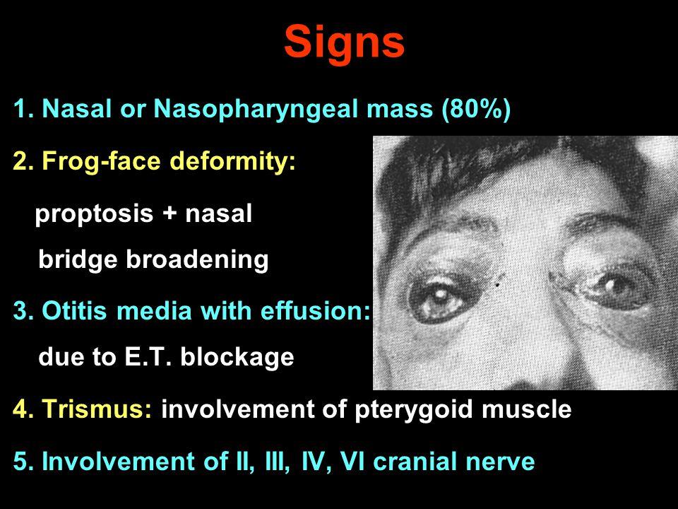 Signs 1. Nasal or Nasopharyngeal mass (80%) 2. Frog-face deformity: proptosis + nasal bridge broadening 3. Otitis media with effusion: due to E.T. blo