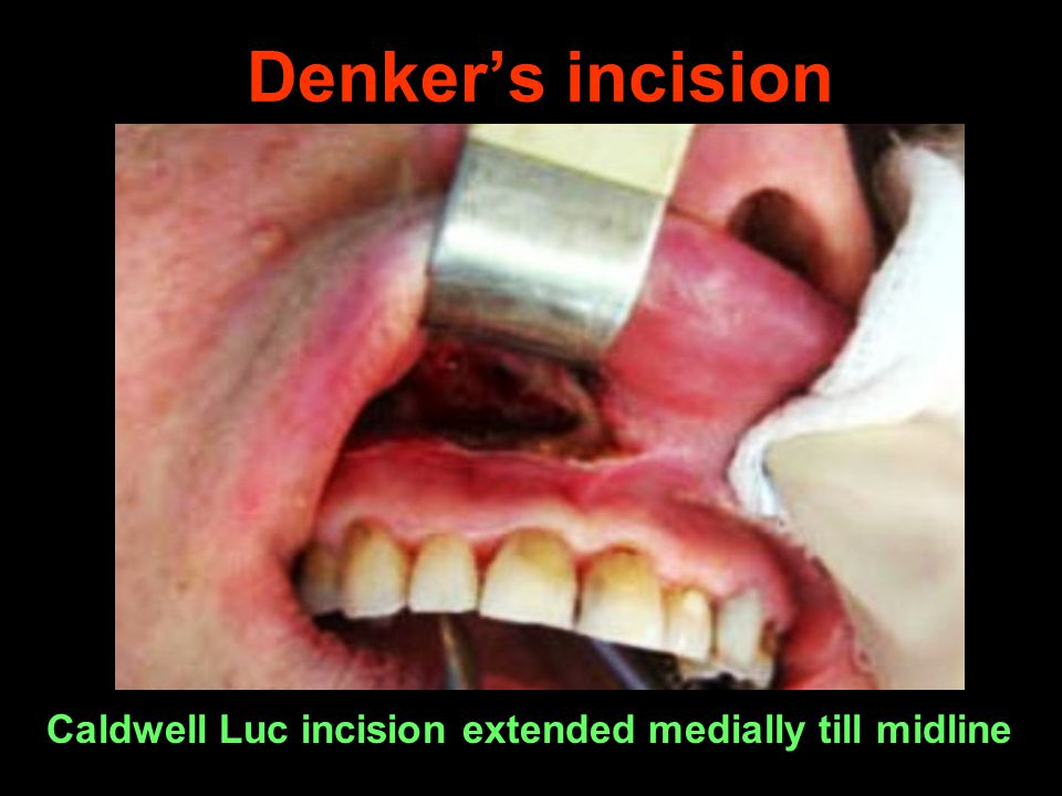 Denker's incision Caldwell Luc incision extended medially till midline
