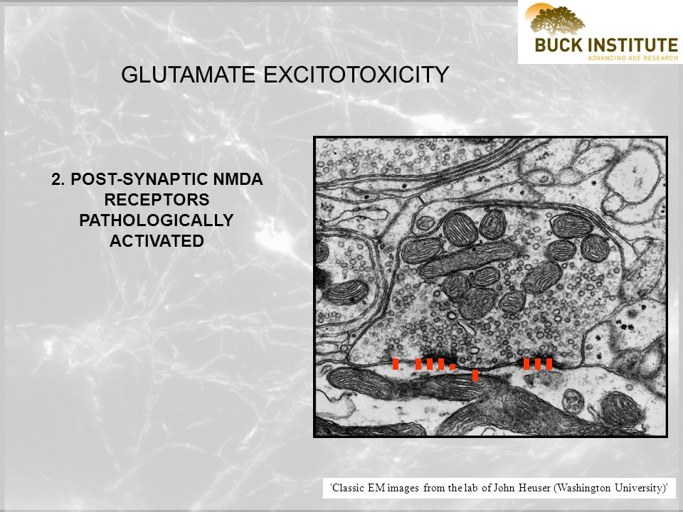 Classic EM images from the lab of John Heuser (Washington University) GLUTAMATE EXCITOTOXICITY 1.