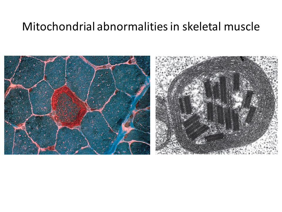 Mitochondrial abnormalities in skeletal muscle