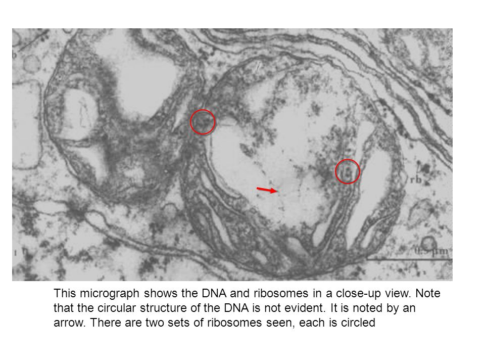 This micrograph shows the DNA and ribosomes in a close-up view.