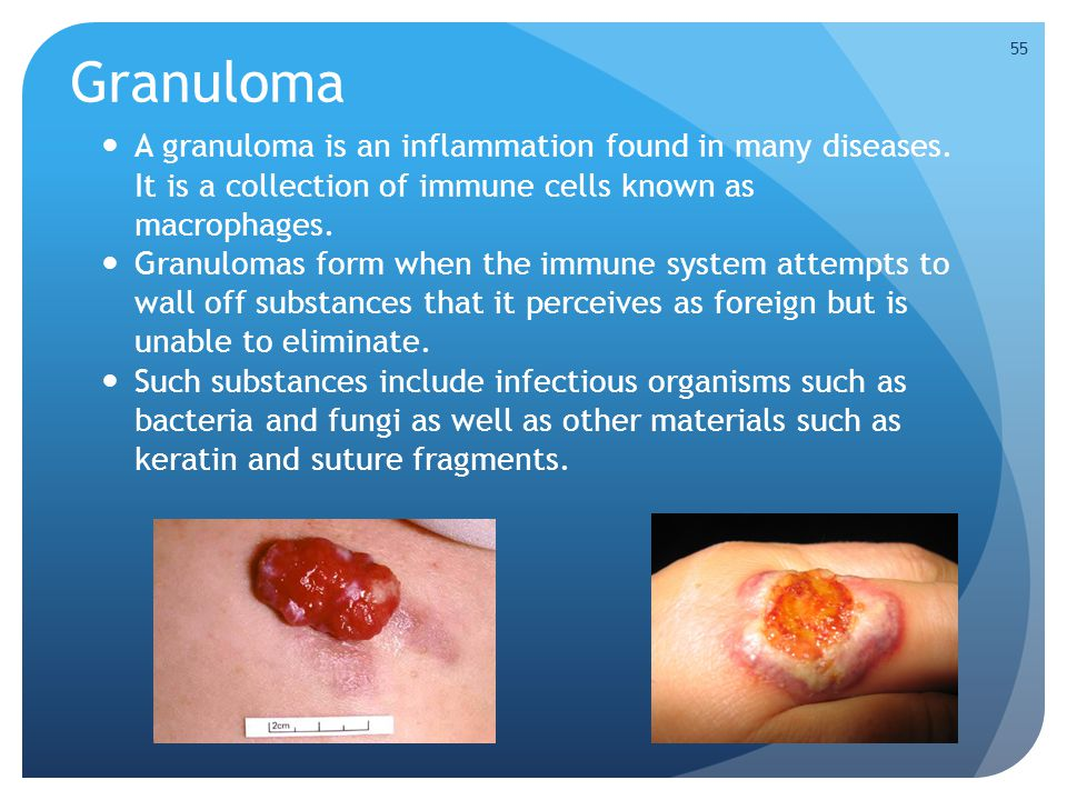Granuloma A granuloma is an inflammation found in many diseases. It is a collection of immune cells known as macrophages. Granulomas form when the imm