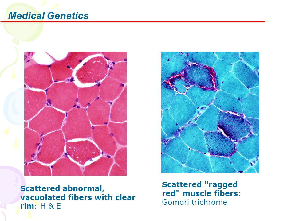 Medical Genetics Scattered abnormal, vacuolated fibers with clear rim: H & E Scattered ragged red muscle fibers: Gomori trichrome