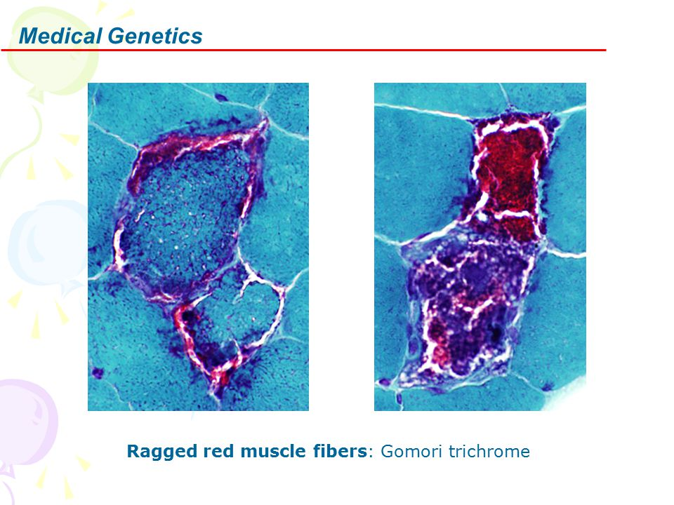 Medical Genetics Ragged red muscle fibers: Gomori trichrome
