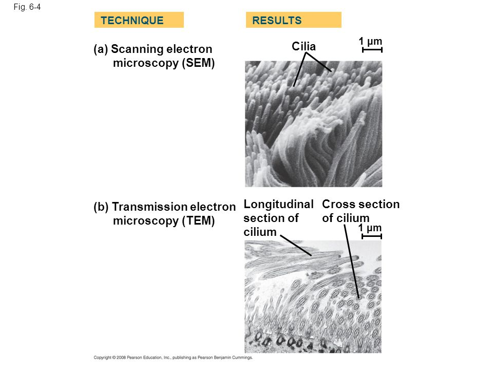 Fig. 6-4 (a) Scanning electron microscopy (SEM) TECHNIQUERESULTS (b) Transmission electron microscopy (TEM) Cilia Longitudinal section of cilium Cross