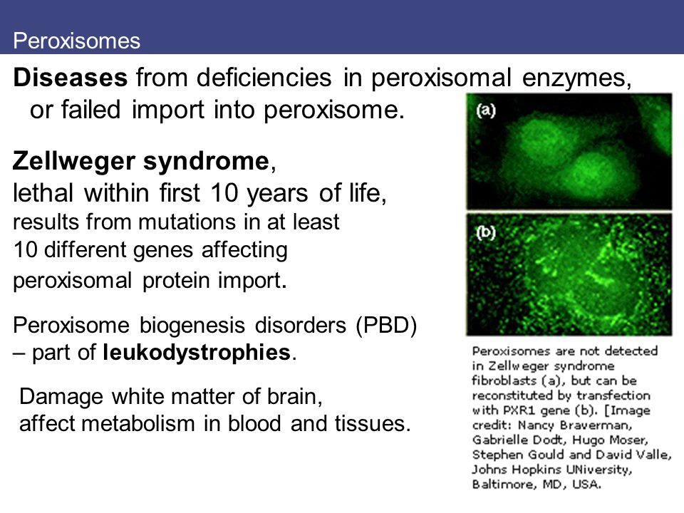 Peroxisomes Diseases from deficiencies in peroxisomal enzymes, or failed import into peroxisome. Zellweger syndrome, lethal within first 10 years of l
