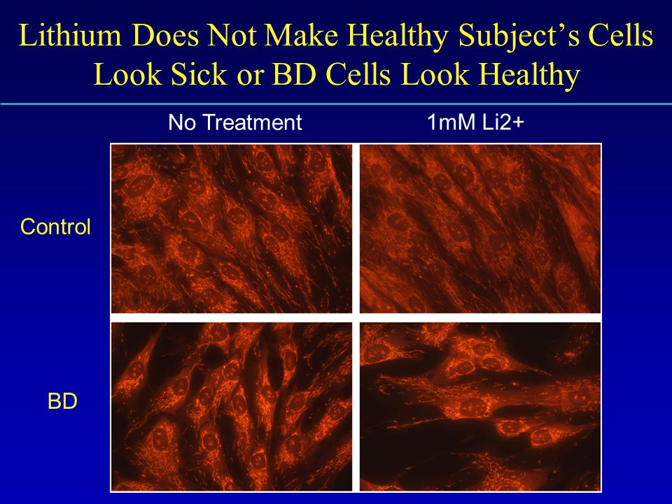 Lithium Does Not Make Healthy Subject's Cells Look Sick or BD Cells Look Healthy No Treatment 1mM Li2+ Control BD