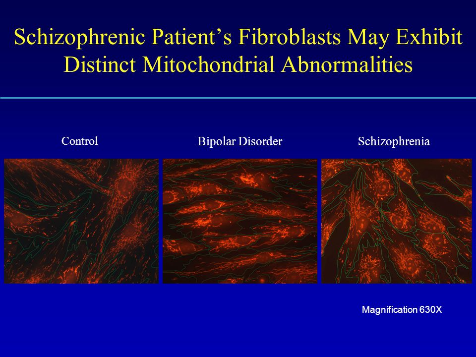 Schizophrenic Patient's Fibroblasts May Exhibit Distinct Mitochondrial Abnormalities Control Bipolar DisorderSchizophrenia Magnification 630X