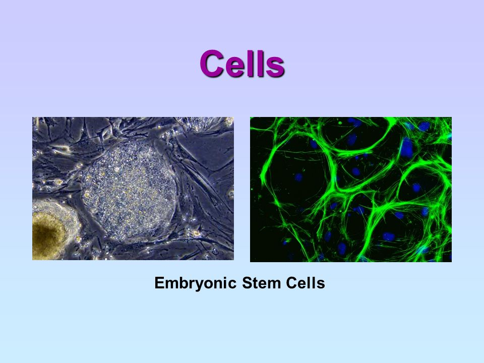 Vacuoles in Plant Cells Plant cells usually have a large central vacuole which contains a liquid called cell sap Cell sap contains dissolved substances such as sugars, mineral salts and amino acids