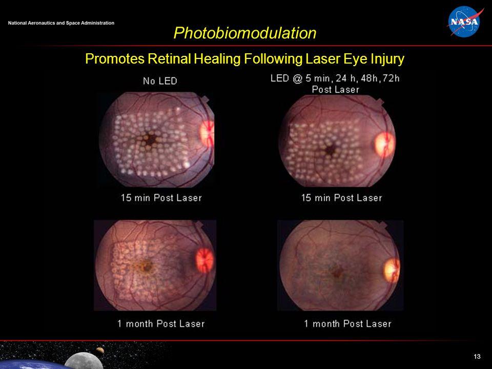 13 Photobiomodulation Promotes Retinal Healing Following Laser Eye Injury