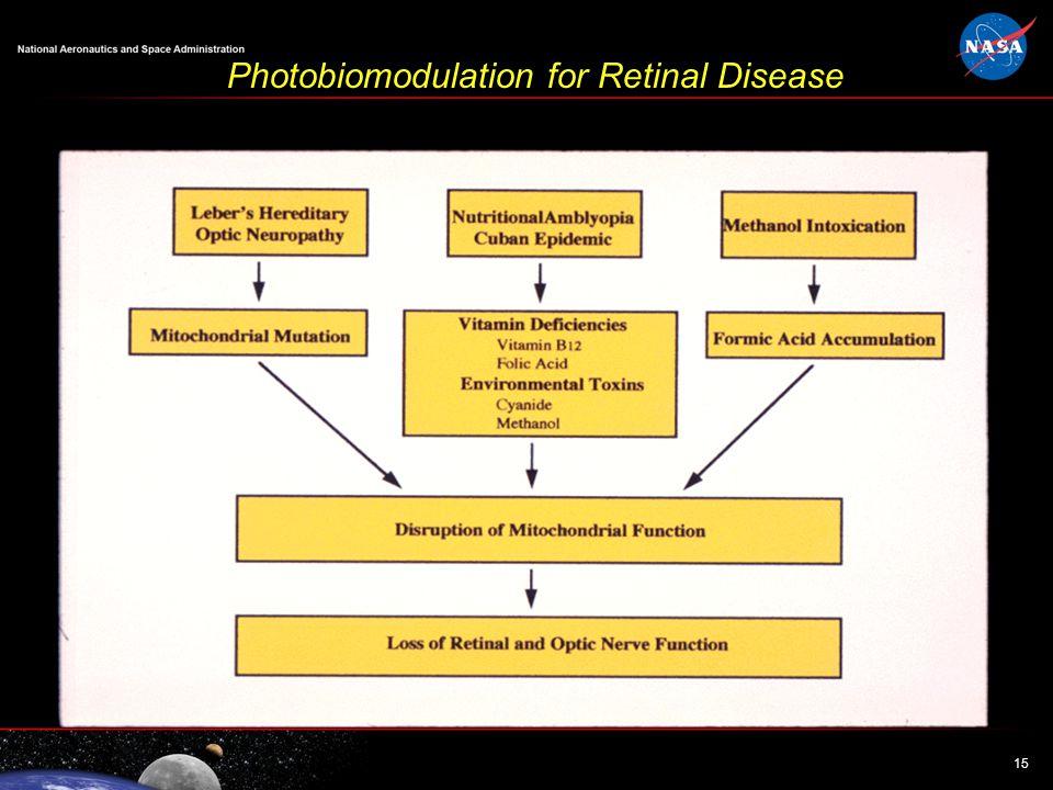 15 Photobiomodulation for Retinal Disease