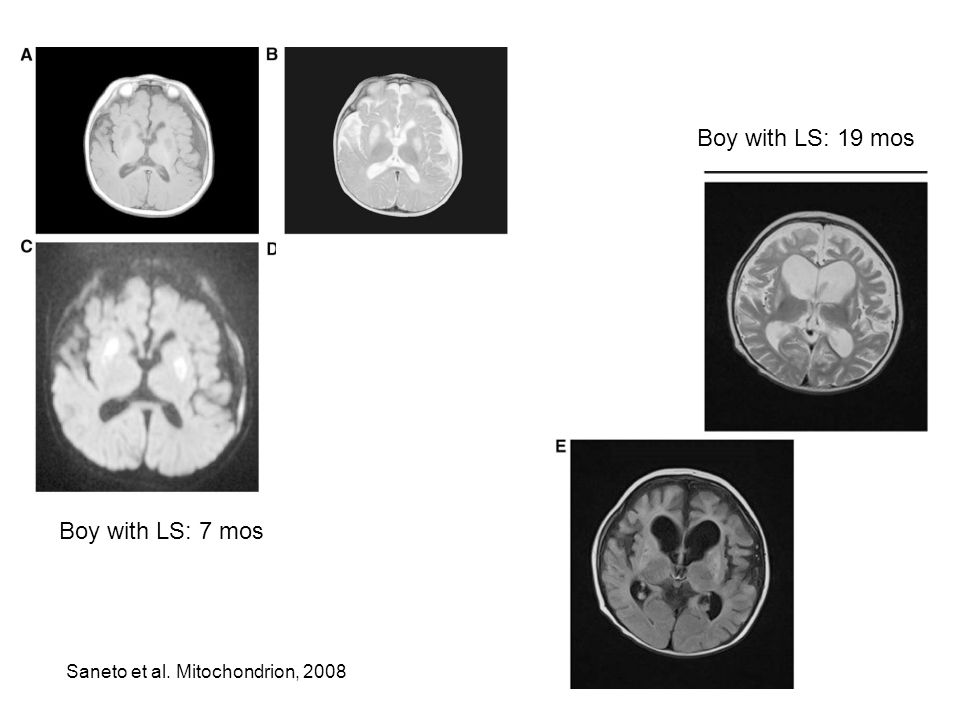 Saneto et al. Mitochondrion, 2008 Boy with LS: 7 mos Boy with LS: 19 mos