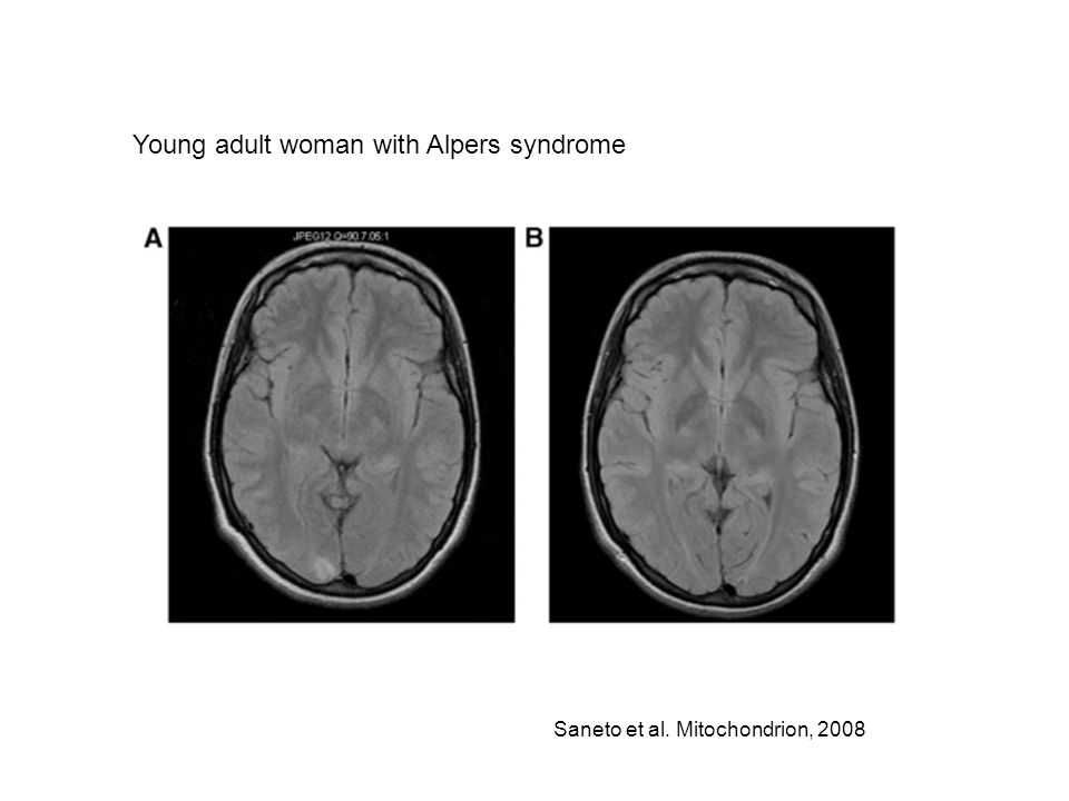 Saneto et al. Mitochondrion, 2008 Young adult woman with Alpers syndrome