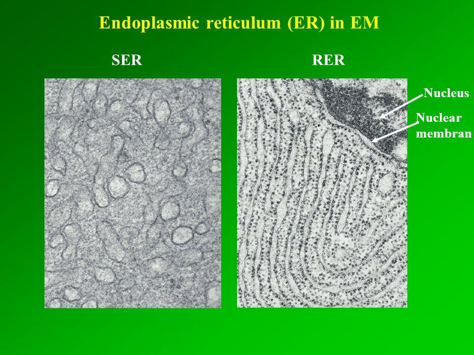 Endoplasmic reticulum (ER) in EM SER RER Nucleus Nuclear membran