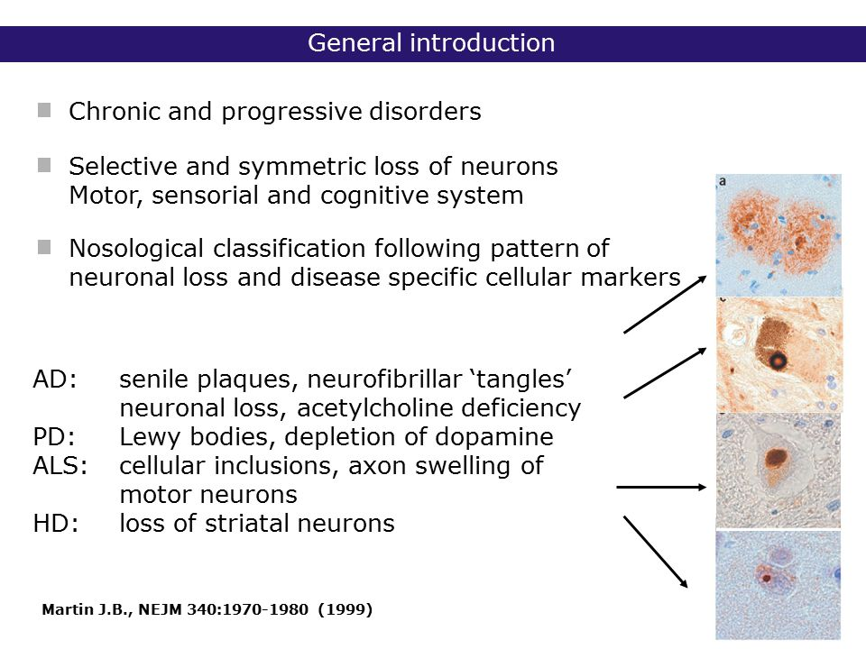 Outline Triplet repeat disorders - Class I: non-coding repeat, loss of protein function - Class II: non-coding repeat, novel protein function - Class III: coding repeat expansions Alzheimer disease (AD) Introduction Diseases of mitochondrial DNA (mt DNA)