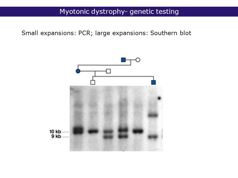 Myotonic dystrophy- genetic testing Small expansions: PCR; large expansions: Southern blot