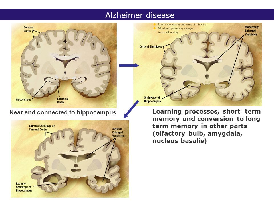 FXTAS: Fragile X associated Tremor-Ataxia syndrome FXTAS -25-30% of male carriers premutation: FXTAS -> 50 years -intentional tremor -ataxia -Parkinson-like manifestations -MRI: white matter lesions in cerebellum