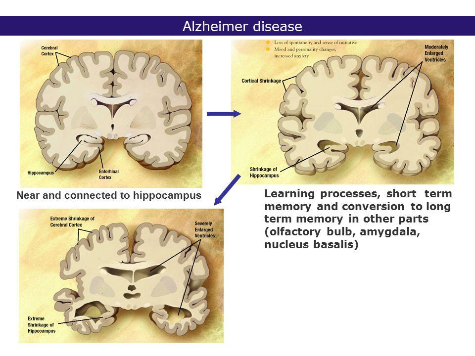 2° lic Biomedische Wetenschappen 2006 - 2007 Alzheimer disease - neuropathology Diagnosis/testing histological findings (neuropathological hallmarks) in brain tissue of ß-amyloid (senile) plaques and intraneuronal neurofibrillary tangles