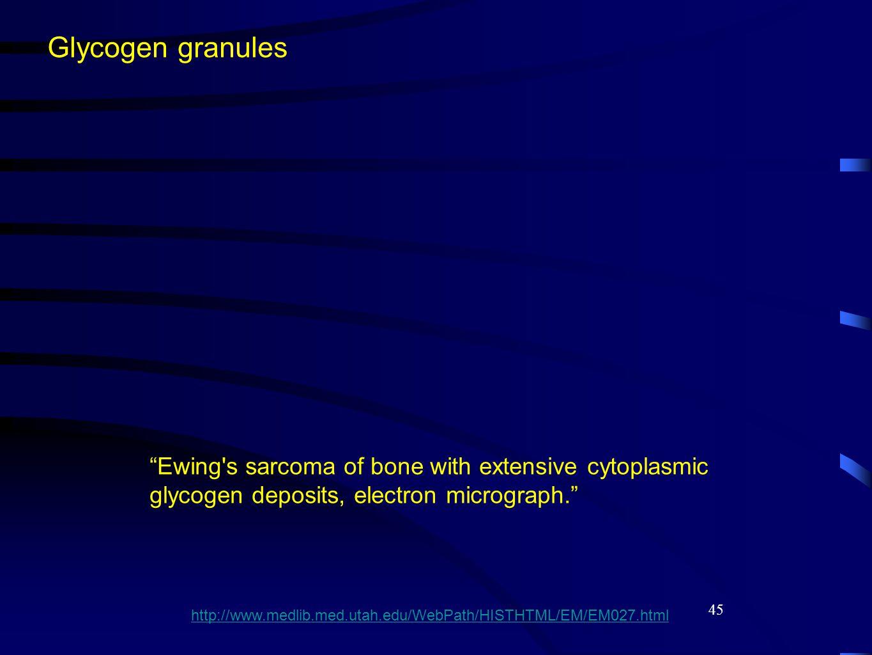 45 Glycogen granules Ewing s sarcoma of bone with extensive cytoplasmic glycogen deposits, electron micrograph. http://www.medlib.med.utah.edu/WebPath/HISTHTML/EM/EM027.html