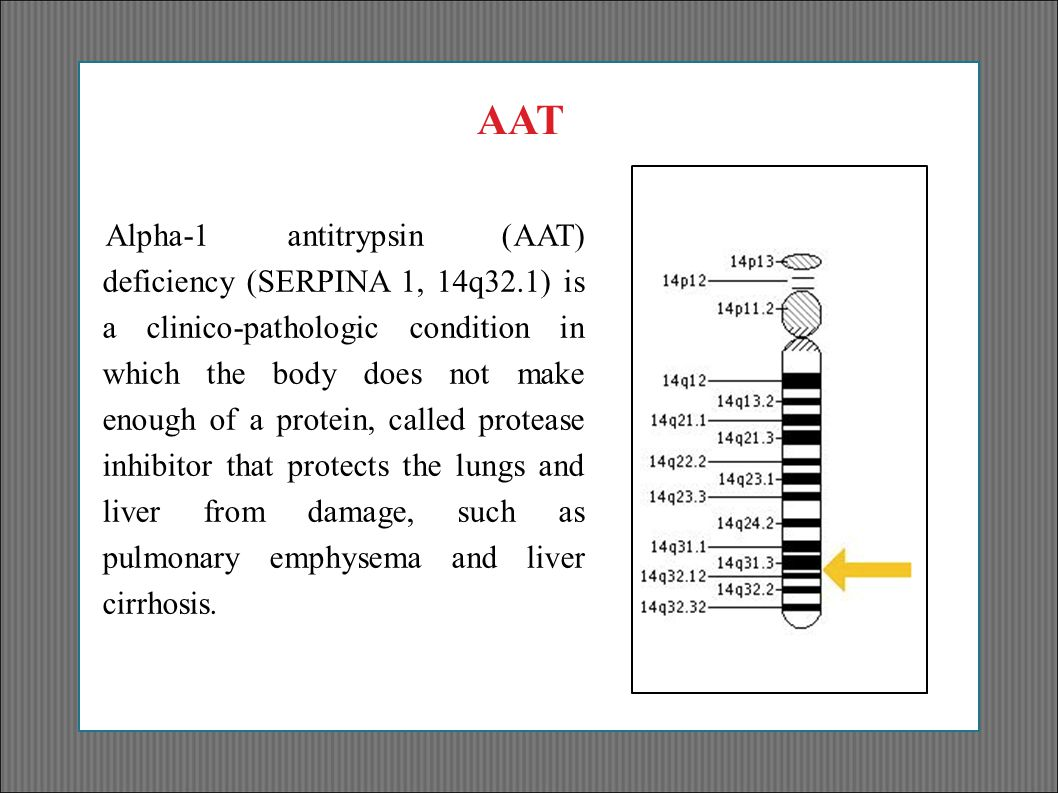 Alpha-1 antitrypsin (AAT) deficiency (SERPINA 1, 14q32.1) is a clinico-pathologic condition in which the body does not make enough of a protein, calle