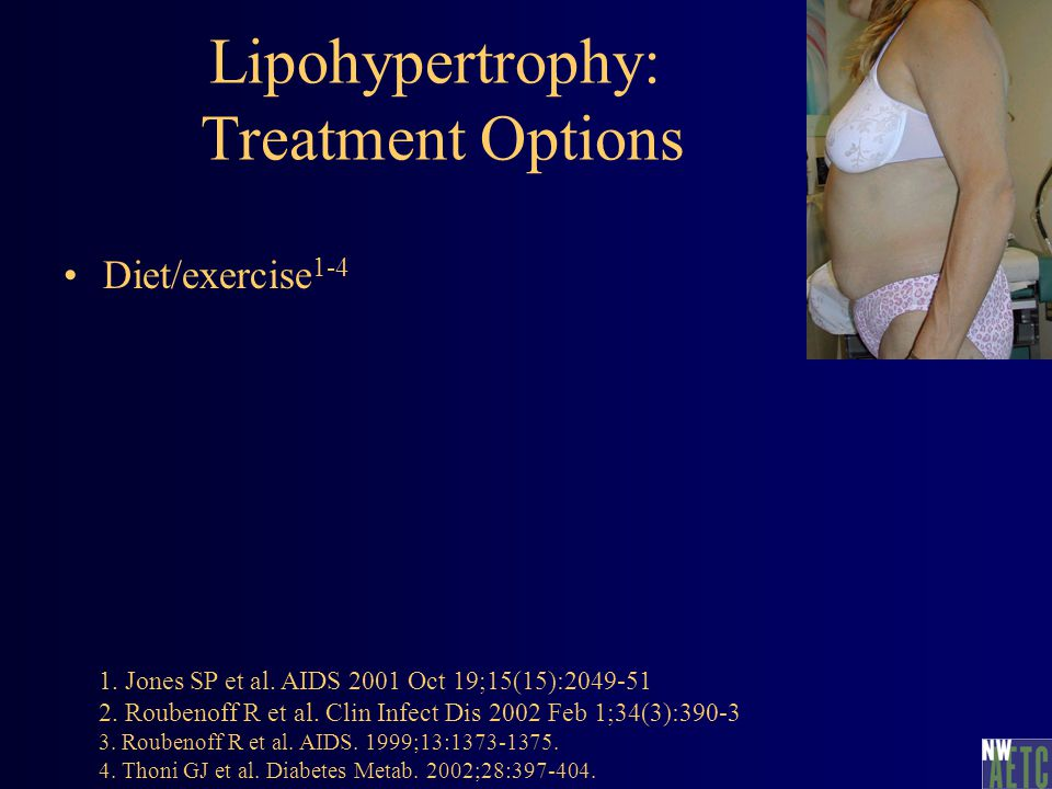 Lipohypertrophy: Treatment Options Diet/exercise 1-4 1.