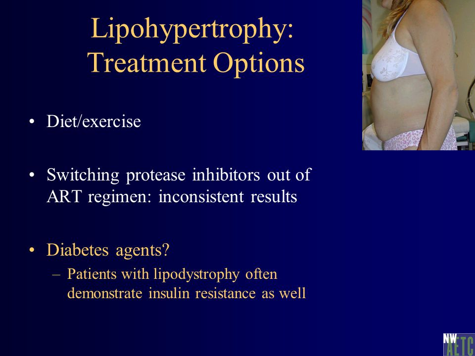 Lipohypertrophy: Treatment Options Diet/exercise Switching protease inhibitors out of ART regimen: inconsistent results Diabetes agents? –Patients wit