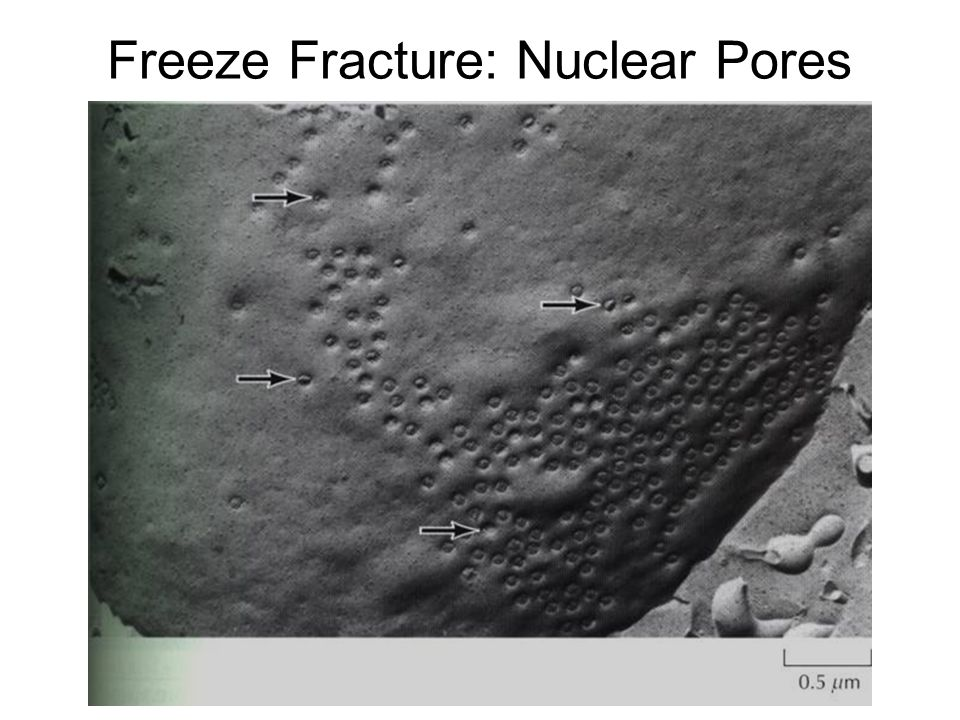 Freeze Fracture: Nuclear Pores
