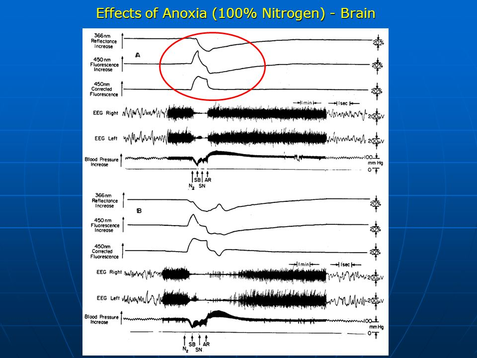 Effects of Anoxia (100% Nitrogen) - Brain