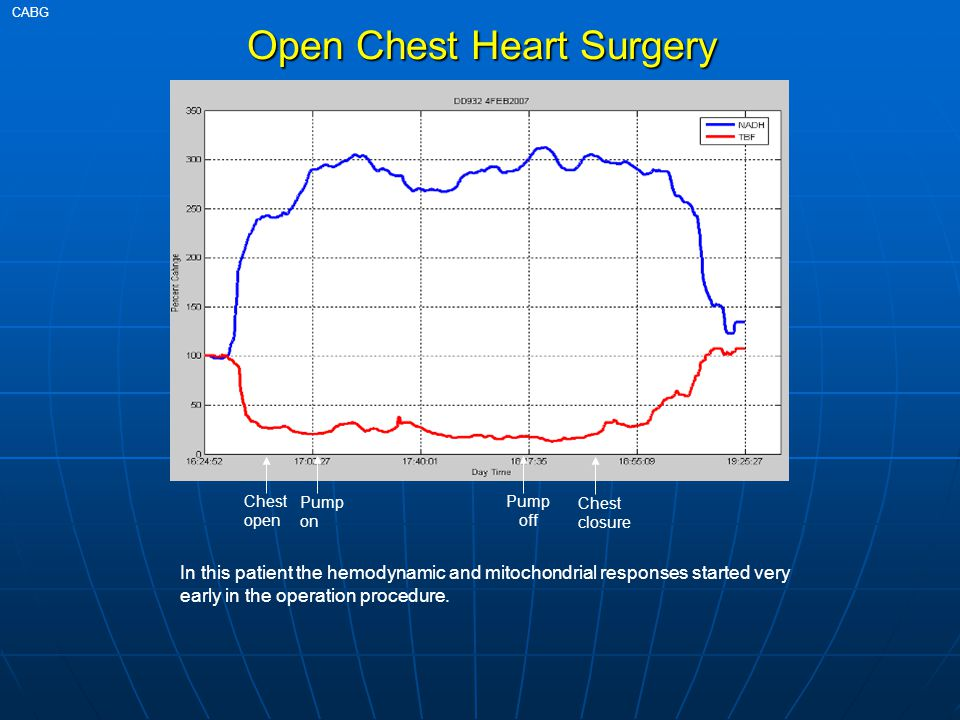 Open Chest Heart Surgery 38min CABG In this patient the hemodynamic and mitochondrial responses started very early in the operation procedure. Chest o