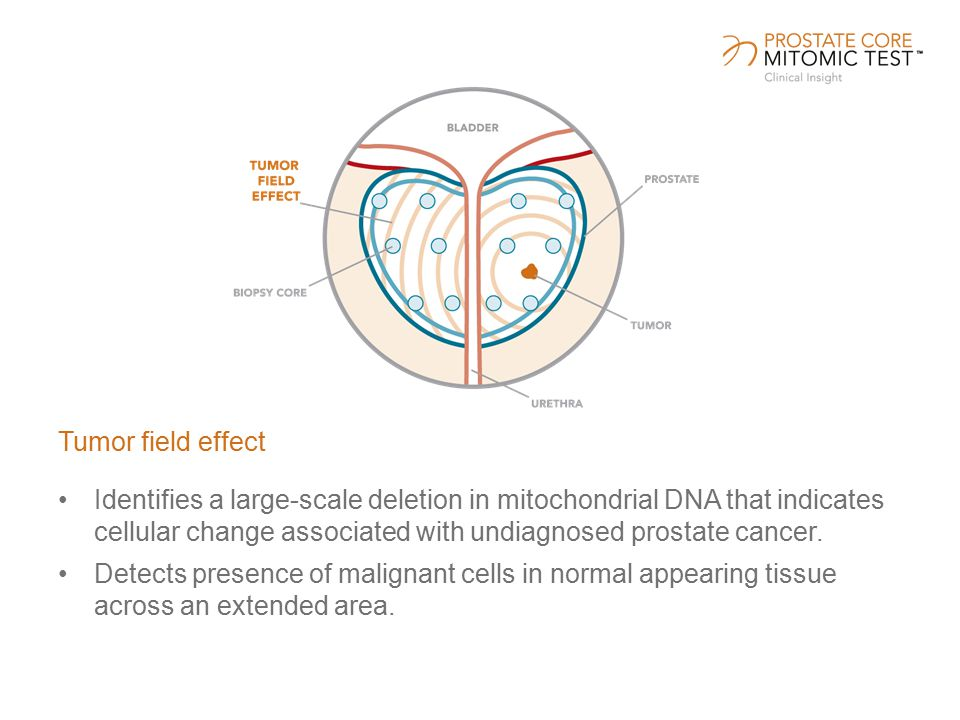 Identifies a large-scale deletion in mitochondrial DNA that indicates cellular change associated with undiagnosed prostate cancer.