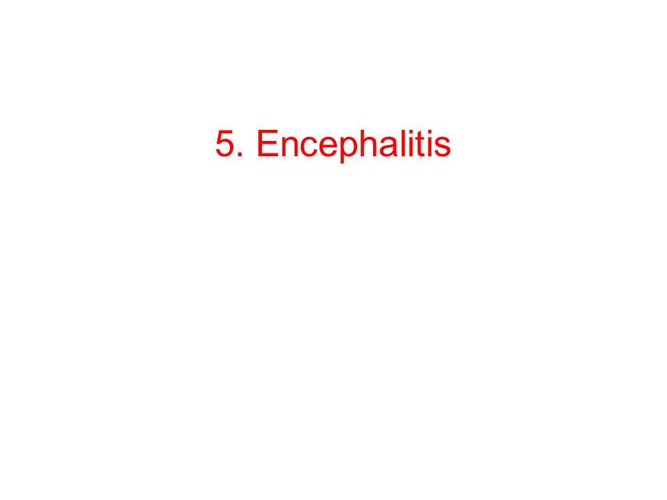 A Provocative Proposal: Encephalitis is Protective.