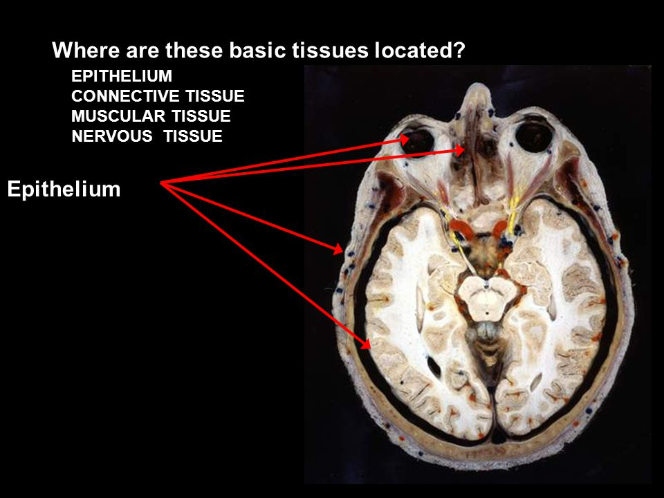EPITHELIUM CONNECTIVE TISSUE MUSCULAR TISSUE NERVOUS TISSUE Where are these basic tissues located.