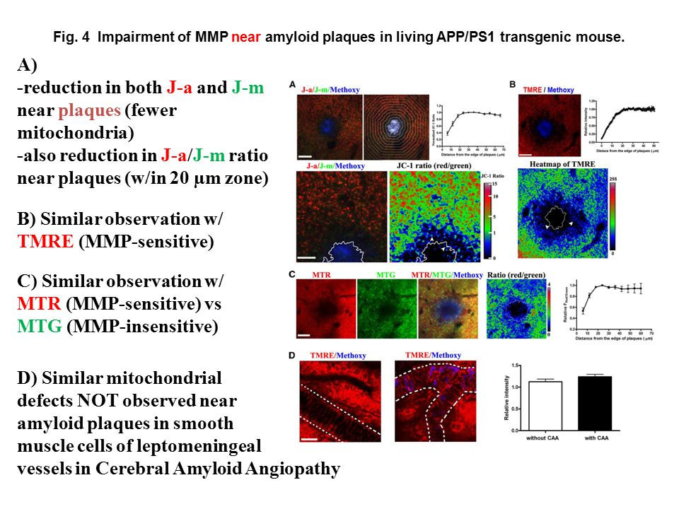 Fig. 4 Impairment of MMP near amyloid plaques in living APP/PS1 transgenic mouse.