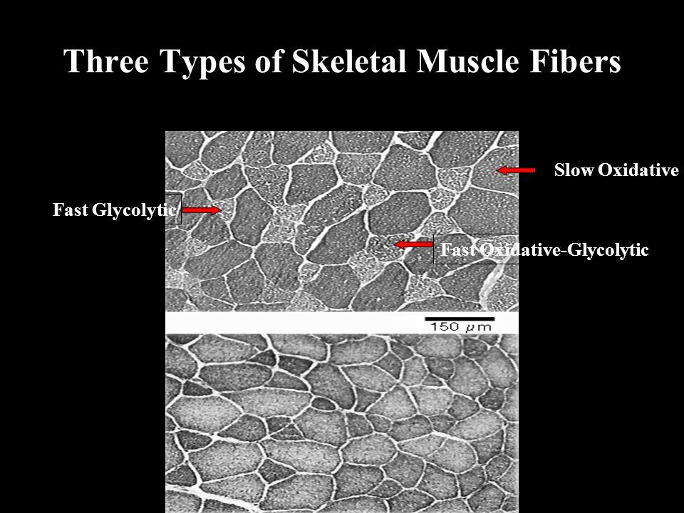 Three Types of Skeletal Muscle Fibers Slow Oxidative Fast Oxidative-Glycolytic Fast Glycolytic