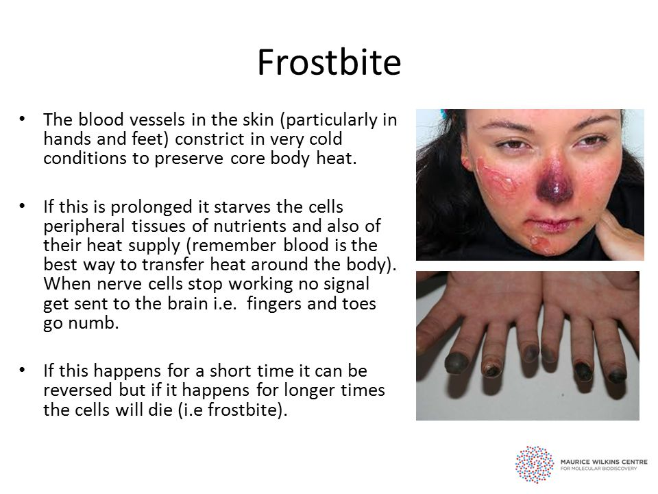 Frostbite The blood vessels in the skin (particularly in hands and feet) constrict in very cold conditions to preserve core body heat.