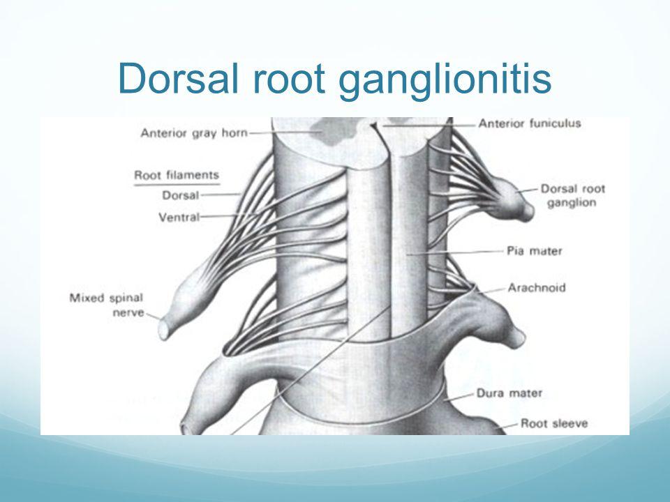 Dorsal root ganglionitis
