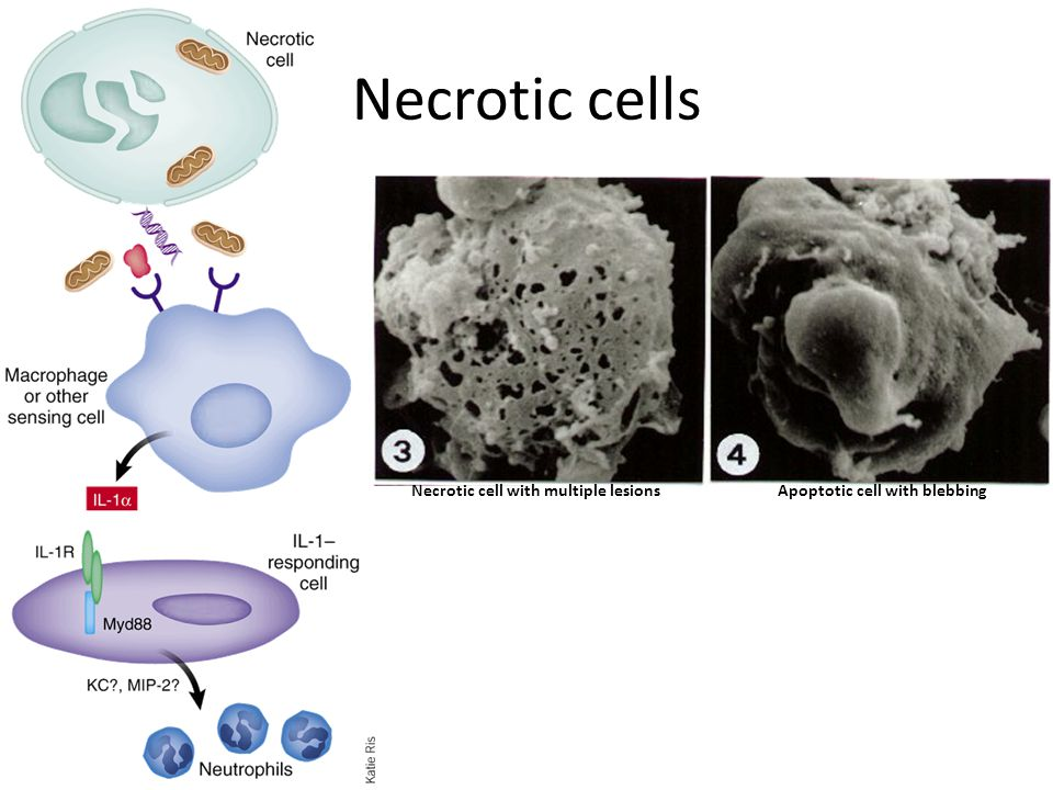 Necrotic cells Necrotic cell with multiple lesionsApoptotic cell with blebbing
