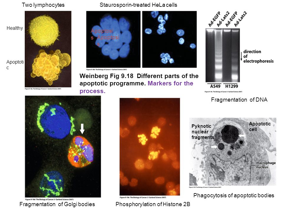 Weinberg Fig 9.18 Different parts of the apoptotic programme. Markers for the process. Two lymphocytes Healthy Apoptoti c Fragmentation of Golgi bodie