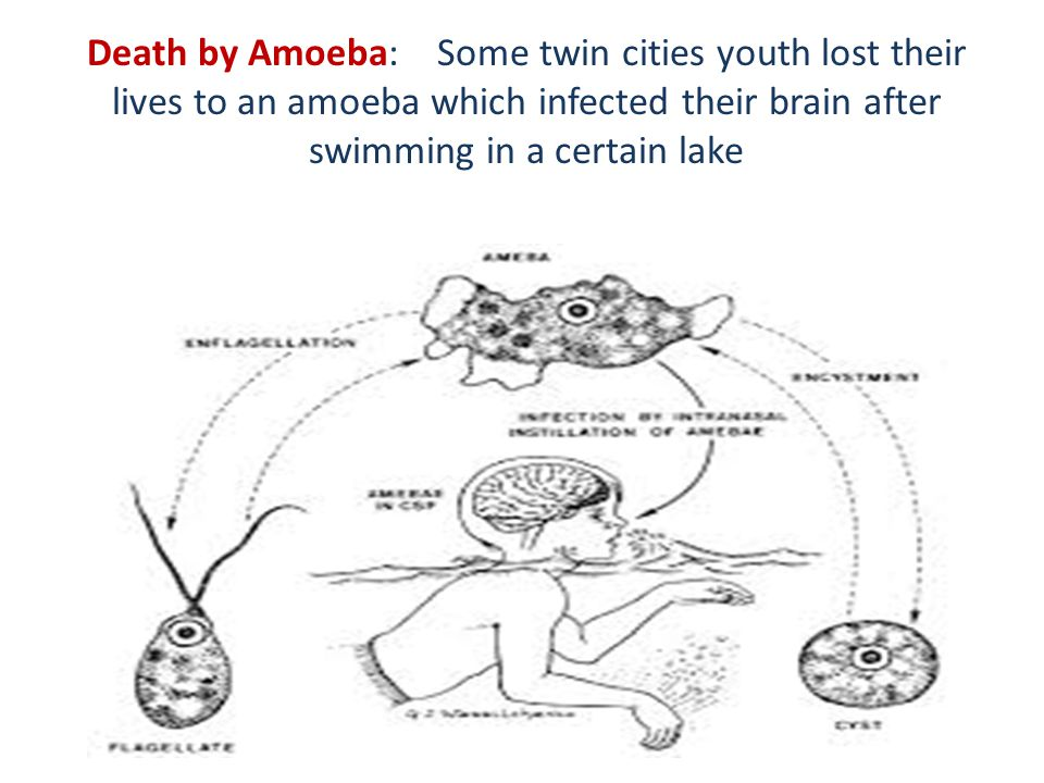Death by Amoeba: Some twin cities youth lost their lives to an amoeba which infected their brain after swimming in a certain lake