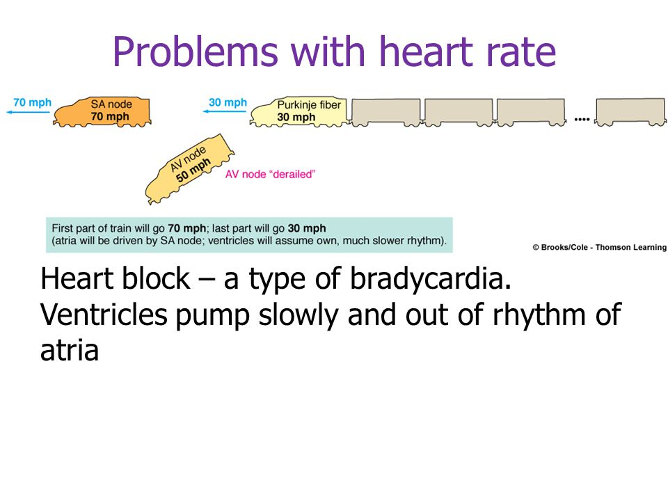 Problems with heart rate AV node rhythm is slower - bradycardia
