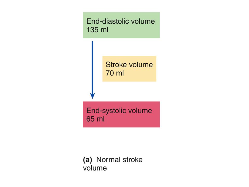 Systolic or diastolic murmurs Often due to stenosis or regurgitation at a valve ( whistle vs.