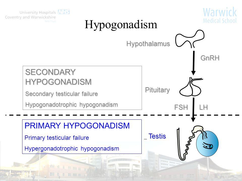 LHFSH GnRH Hypothalamus Pituitary Testis SECONDARY HYPOGONADISM Secondary testicular failure Hypogonadotrophic hypogonadism PRIMARY HYPOGONADISM Primary testicular failure Hypergonadotrophic hypogonadism Hypogonadism